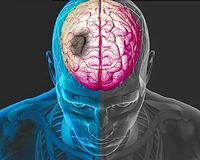 7 признака на тялото, които показват предстоящо начало на инсулт